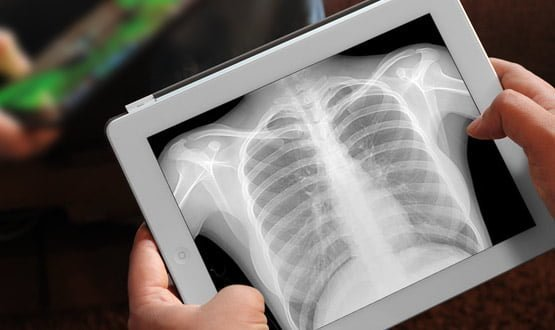 Foundation trust 'checking and updating' x-rays after data issue uncovered
