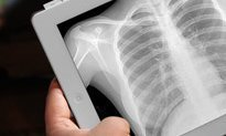 Tablets here to stay in radiology