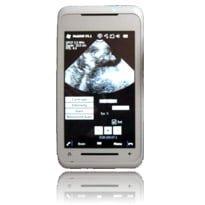 Smartphone based ultrasound gets FDA go