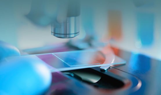 NHS Scotland to link all labs through National Pathology Exchange