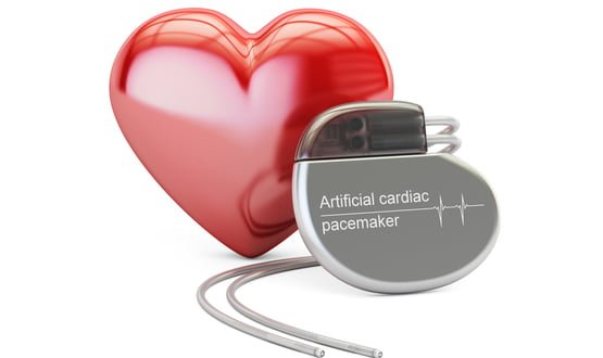 Data from implantable devices to predict heart failure risk in Manchester