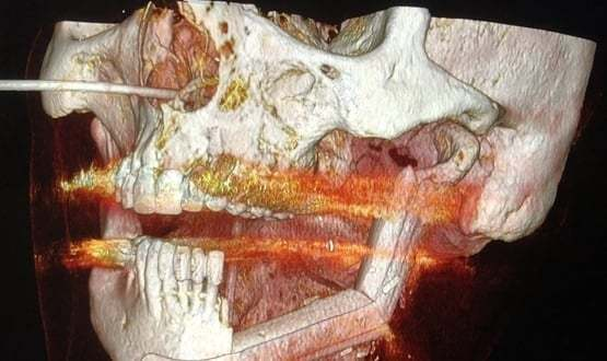 Surgeons use virtual surgery to reconstruct patient's jaw