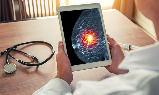 New DeepMind AI 'spots breast cancer better than clinicians'
