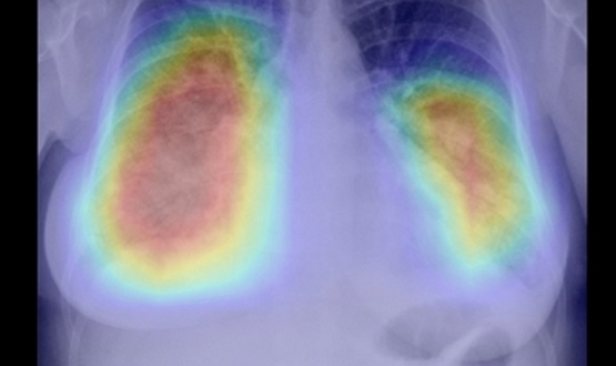 NHS team reports potential for AI in rapid detection of lung cancer
