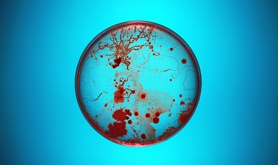 A petri dish containing bacteria