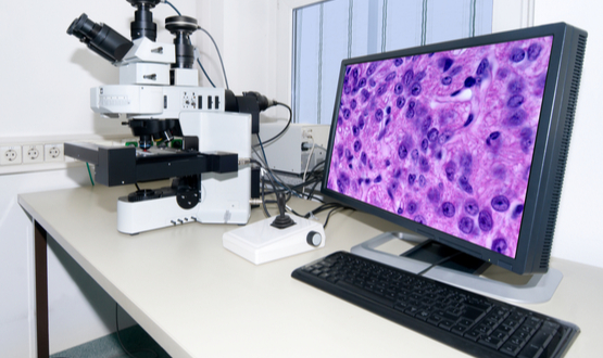 Developing the real business case for digital pathology