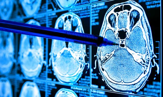 Special Report: Imaging AI
